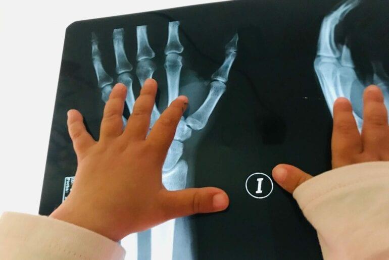 Radiografia do corpo humano na mesa de luz 01