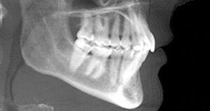 radiografia da arcada dentaria mesa de luz reggio emilia